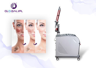 Nd Yag 12ns 7mm 532nm 400m Tattoo Removal Equipment
